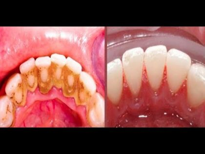 How to Remove Dental Plaque 5 Minutes Naturally Without Going To The Dentist