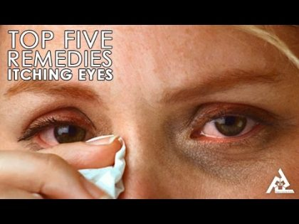 Top 5 Home Remedies for Itching Eyes   Best Health and Beauty Tips   Lifestyle