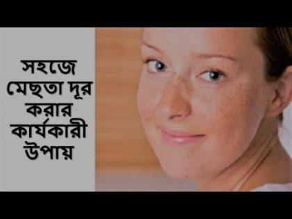 ♥ অল্প সময়ে মেছতা দূর করার কার্যকারী উপায় ♥ Health And Beauty Tips ♥