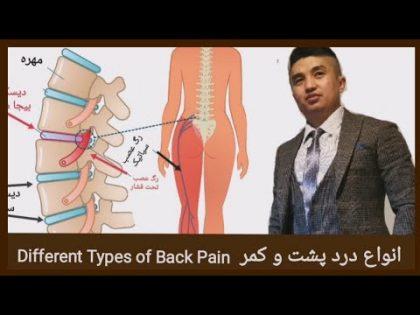 The Types of Back Pain (Afghan Hazaragi Health and Beauty) انواع درد پشت و کمر